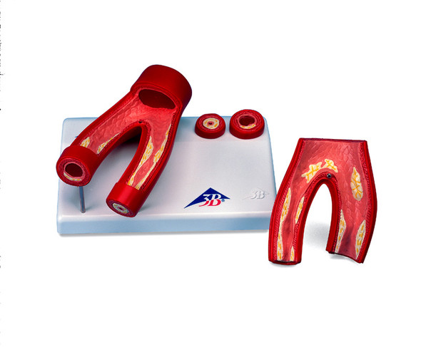 Arteriosclerosis Model, with cross section of artery