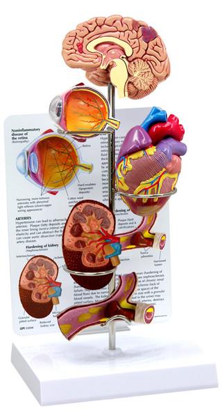 Hypertension Set