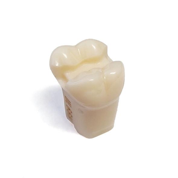 Preprepared Tooth - 2.6 (#14) MOD Prep - UL66H