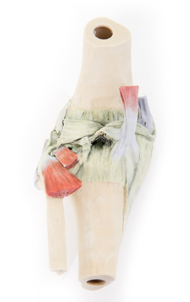 Knee Joint - 3D Printed Cadaver