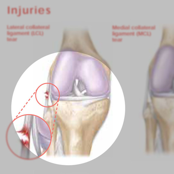 Athletic Injuries of the Knee chart - detail