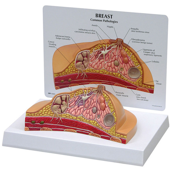 Breast Cross-Section