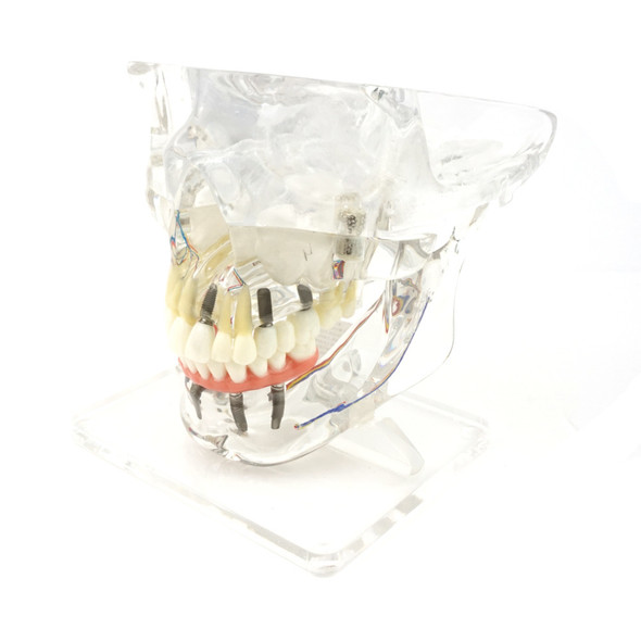Transparent Implant Model with Sinus | RI-104