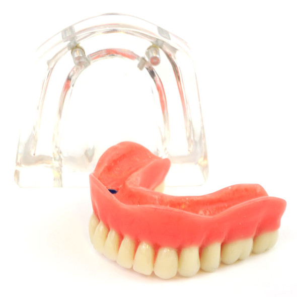 Lower denture model on 2 locator attachments
