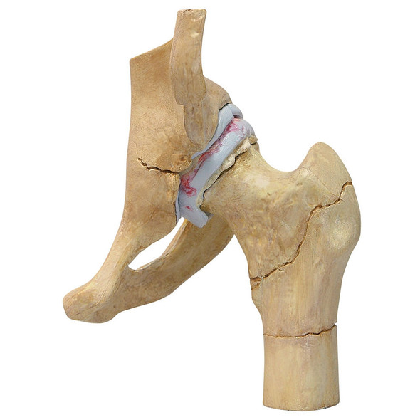 4-Stage Degenerative Bone Diseases of the Hip Set