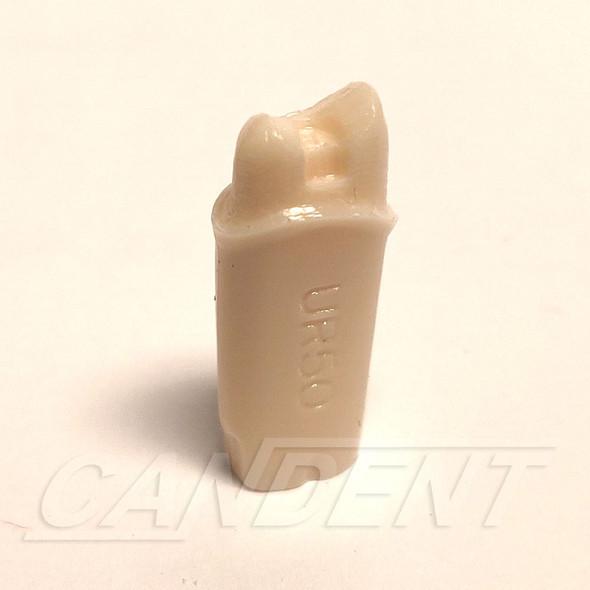 Preprepared Tooth - 1.5 Crown - UR50