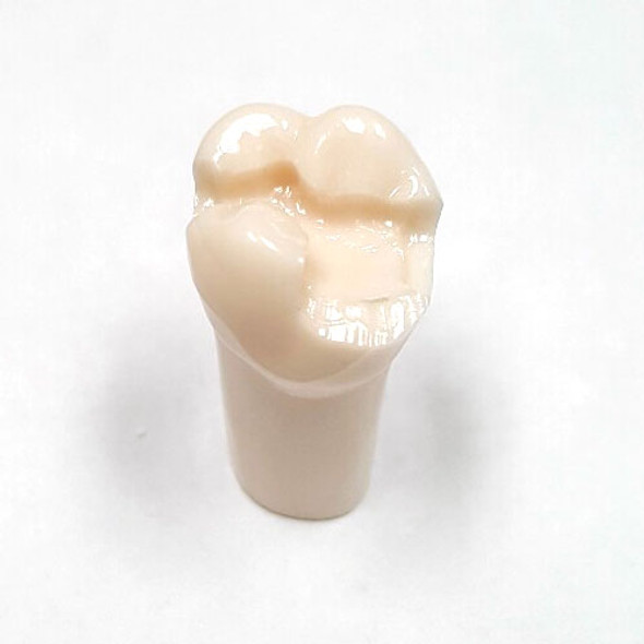 Preprepared Tooth - 2.6 (#14) MOD-B Prep - UL66L 1