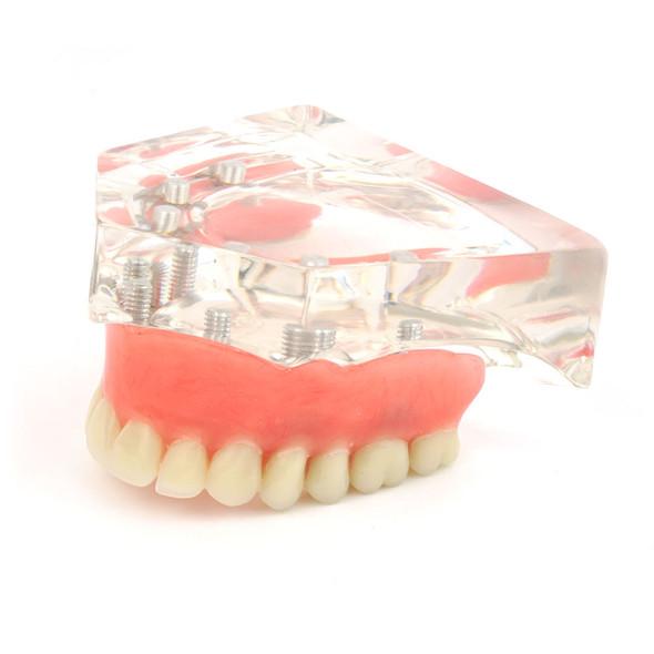 Upper denture model on 6 locator attachments