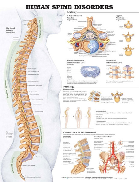 Human Spine Disorders - anatomical wall chart