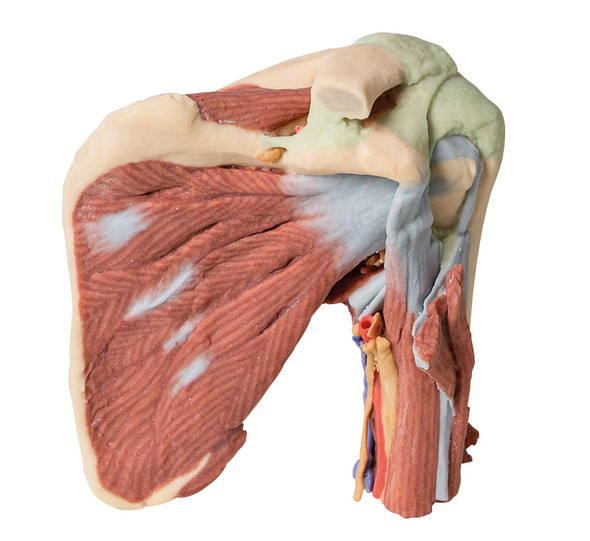 Shoulder - deep dissection of the left shoulder joint, musculature, and associated nerves and vessels - 3D Printed Cadaver