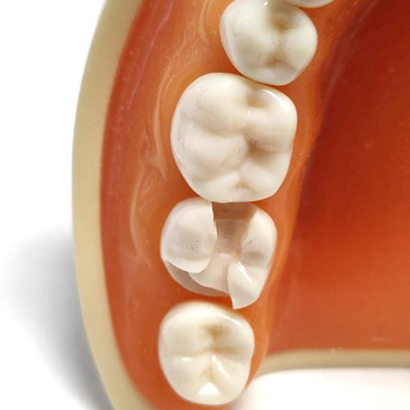 Preprepared Tooth - 3.7 (#18) MOD-B Prep - LL74