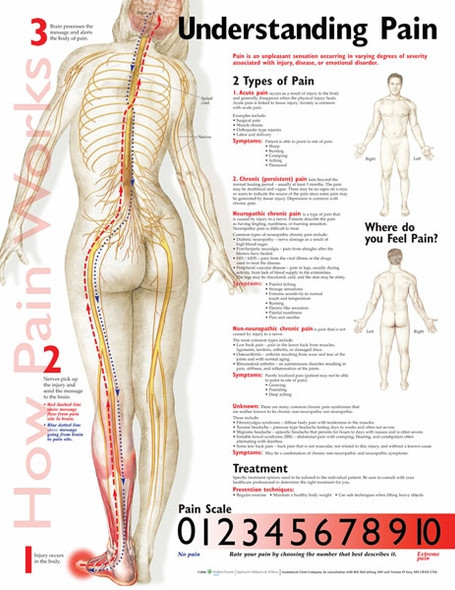 Understanding Pain Anatomical Chart