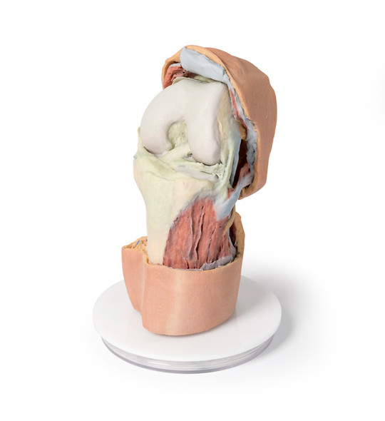Flexed knee joint deep dissection - 3D Printed Cadaver