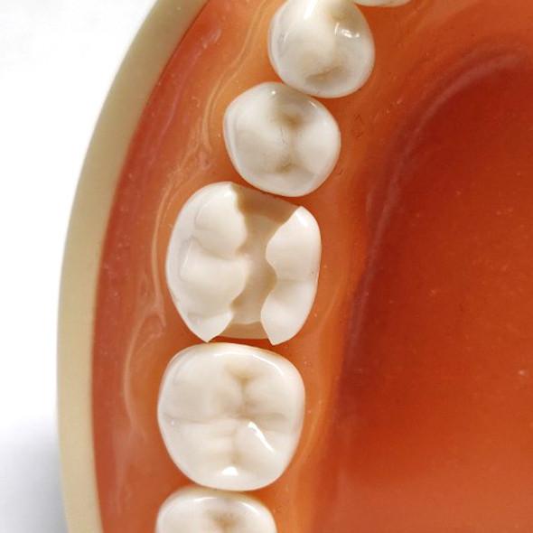Preprepared Tooth - 3.6 (#19) Prep - LL66J