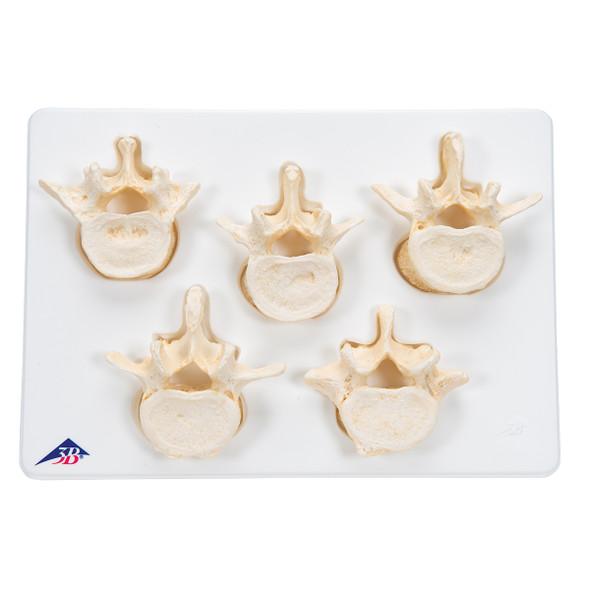 Set of 5 Lumbar Vertebrae