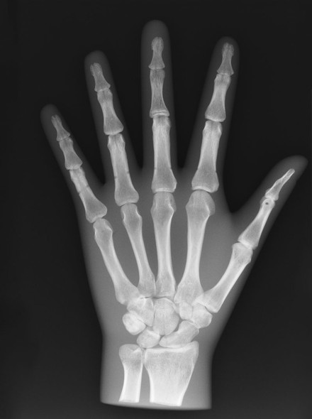 X-Ray Phantom Hand
