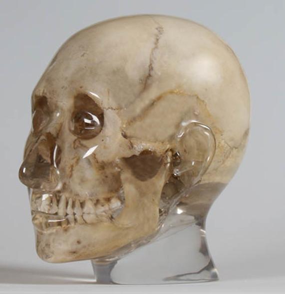 X-ray phantom head, transparent