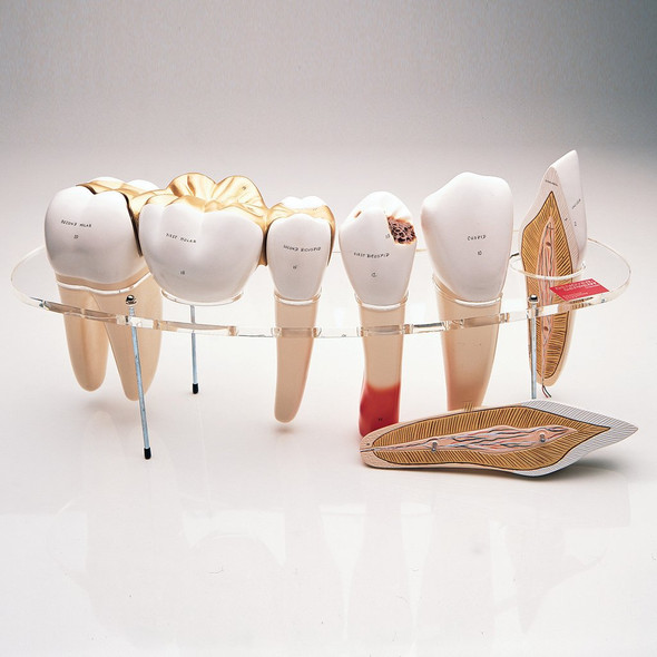 Dental Morphology 7-Part Series - Denoyer Geppert