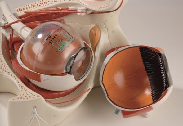 0182-00  Giant Eye in Bony Orbit