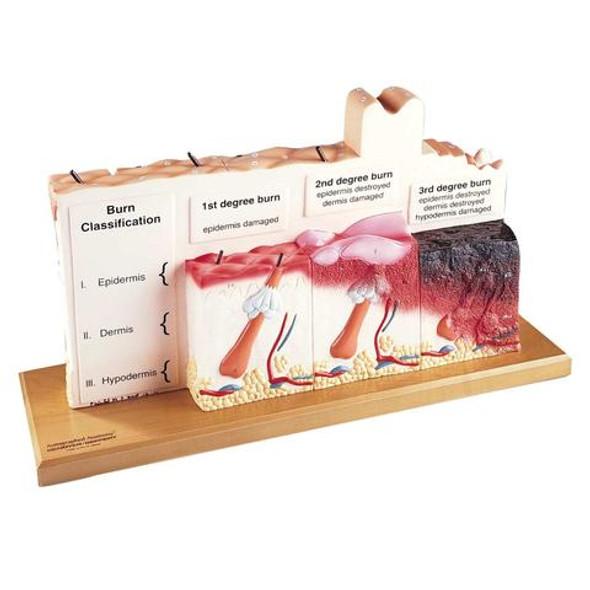 0185-00 Human Skin Series with Burn Pathologies