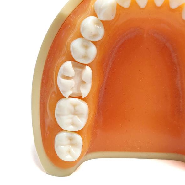 Preprepared Tooth - 3.6 (#19) Prep - LL64L