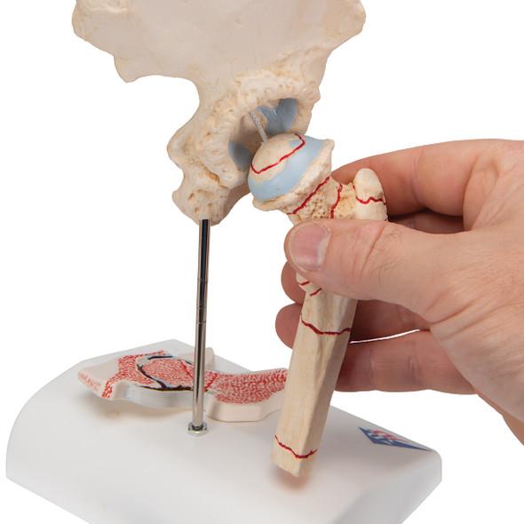 Human Femoral Fracture & Hip Osteoarthritis Model