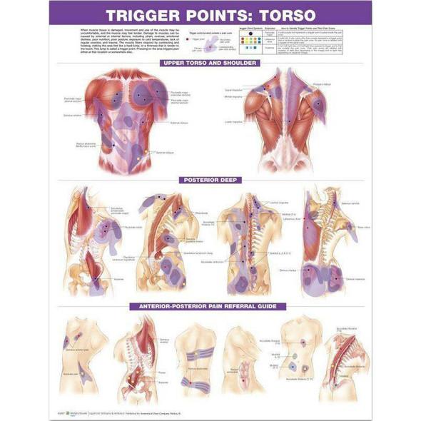 Trigger Point chart, Torso