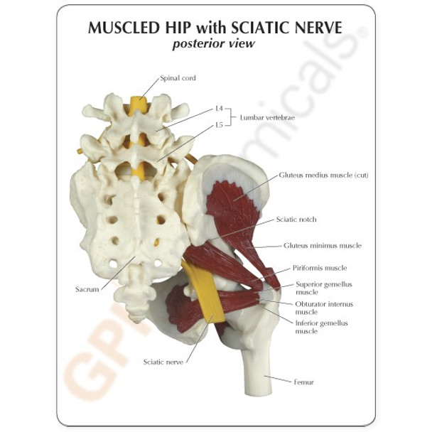 Muscled Hip with Sciatic Nerve - card