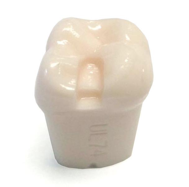 Preprepared Tooth - 2.7 (#15) MO Prep - UL74