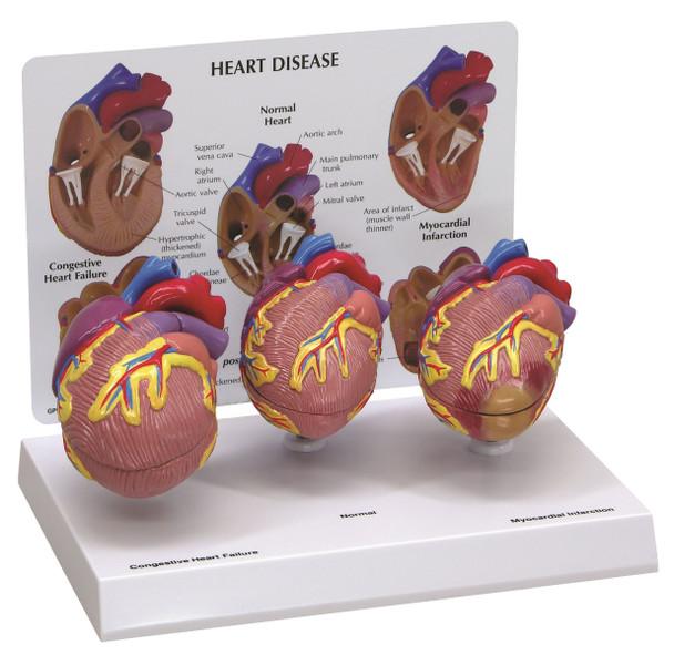 3 Mini Heart Set