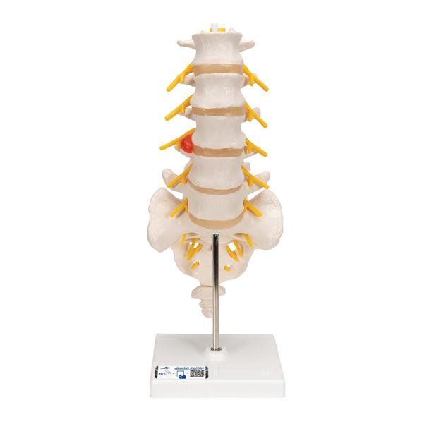 The lumbar model includes a dorso-lateral prolapsed inter-vertebral disc   3B Scientific A76/5