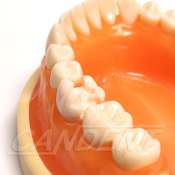 Preprepared Tooth - 3.6 (#19) MOD Prep - LL66B