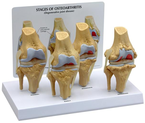 4-Stage Osteoarthritic Knee