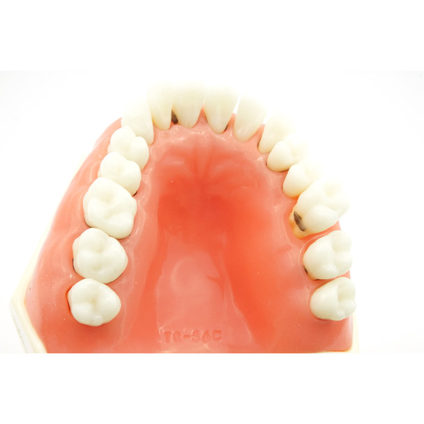 TR56C Hygiene Model with #19 edentulous and #14 super errupted