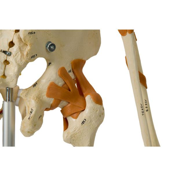 Rudiger Super Skeleton - functional ligamented hip