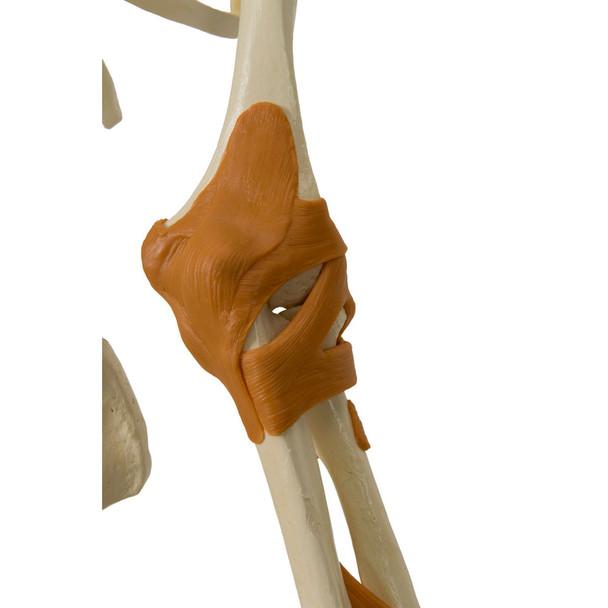Rudiger Super Skeleton - functional ligamented  elbow