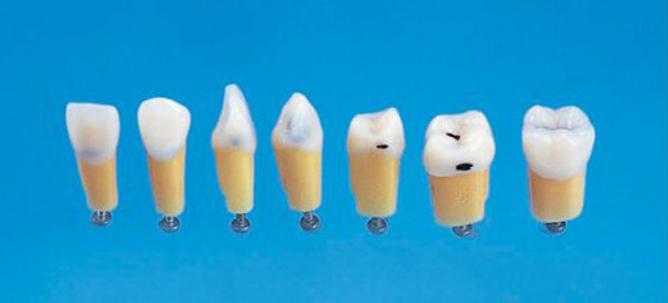 Composite Resin Teeth with Caries