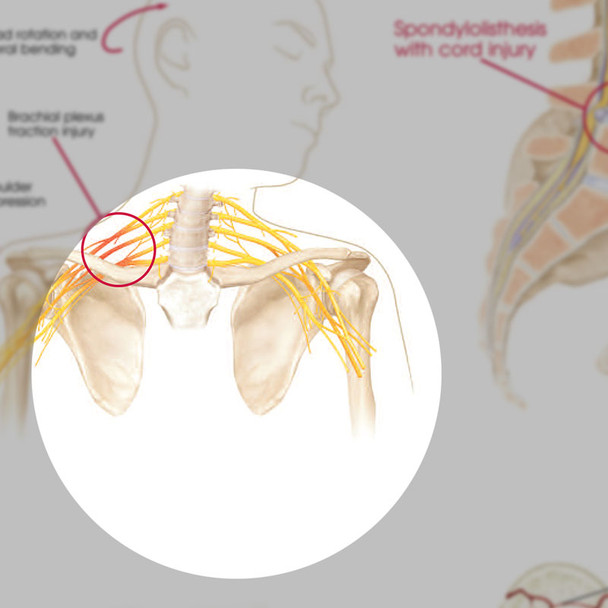 Anatomy and Injuries of the Spine Chart - detail