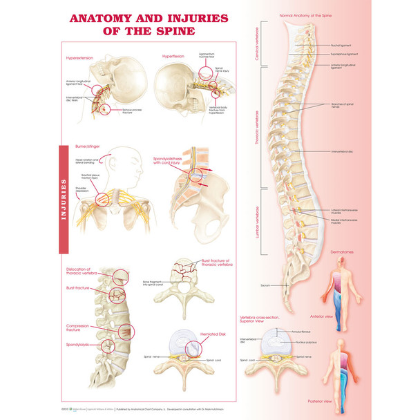 Anatomy and Injuries of the Spine Chart