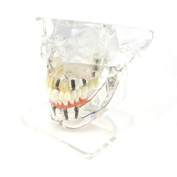 Transparent Implant Model with Sinus | RI-104