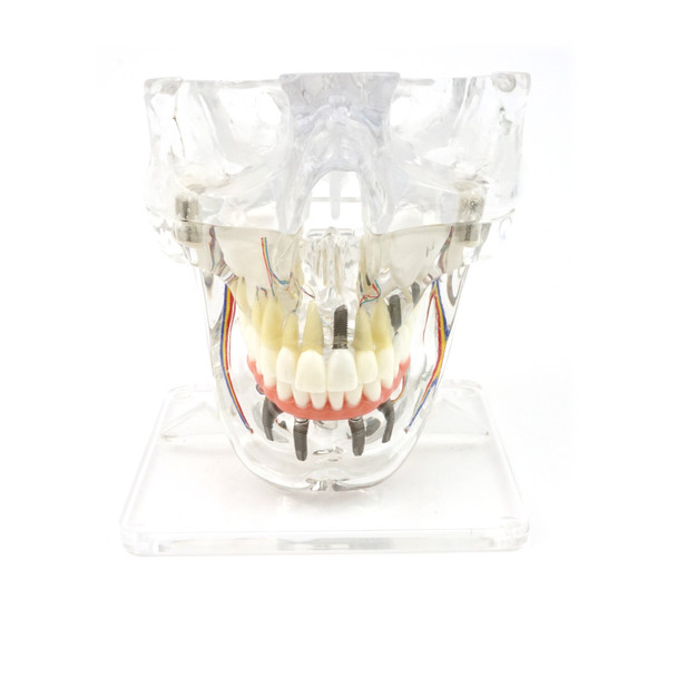 Transparent Implant Model with Sinus - front view