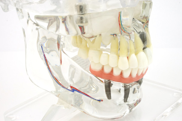 Transparent Implant Model with Sinus - detail