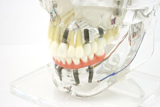 Transparent Implant Model with Sinus - close up