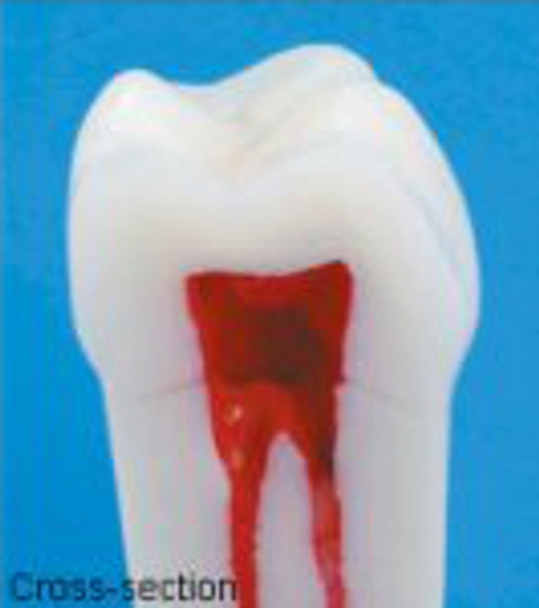 Composite Resin Teeth with Hollow Pulp