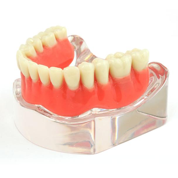 Lower denture model on 4 locator attachments