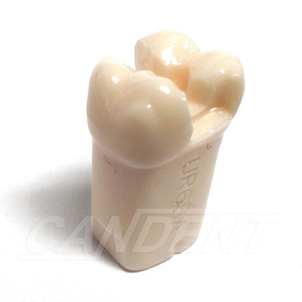 Preprepared Tooth - 1.6 (#3) MOD Prep - UR66A