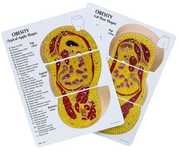 Obesity Model - GPI 3600 - educational cards
