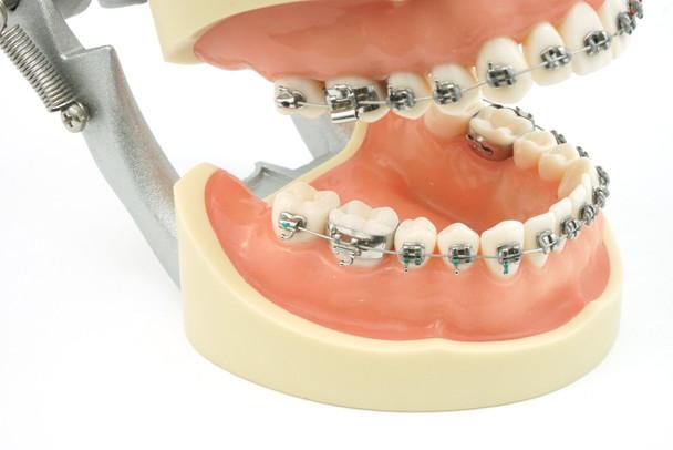28 Tooth Orthodontic Typodont model