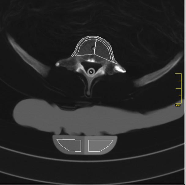 Full Body X-Ray Phantom