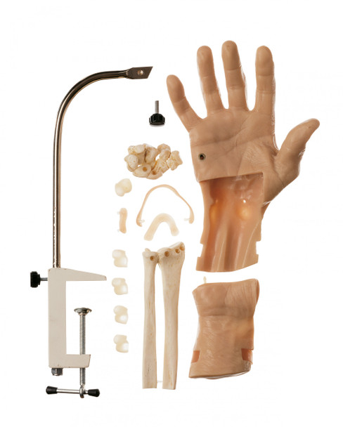 Arthroscopic Model of the Wrist